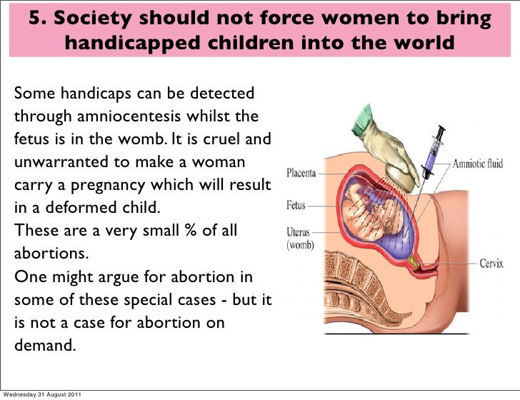people should be made aware of the cruelty of abortion Another way to help is to spread the information about animal cruelty most people do not know the cruelty that happens to animals by being aware, more people can help.