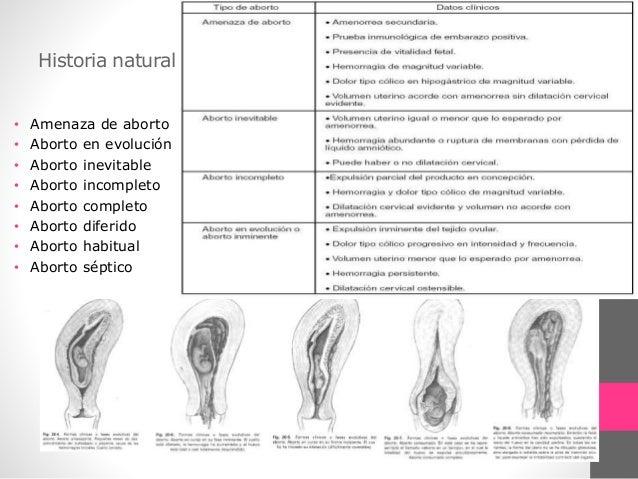 aab7bfa54 AMENAZA DE ABORTO  Criterios Diagnósticos 1. Sangrado genital 2. Dolor en  hipogastrio con o sin irradiación a la ...