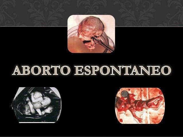 Es la perdida de un embrión o feto por         causas no provocadas            intencionalmente. La causa mas frecuente es...
