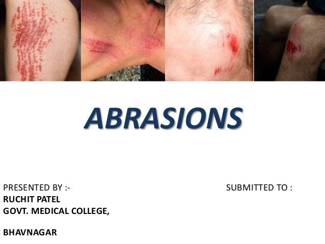abrasions