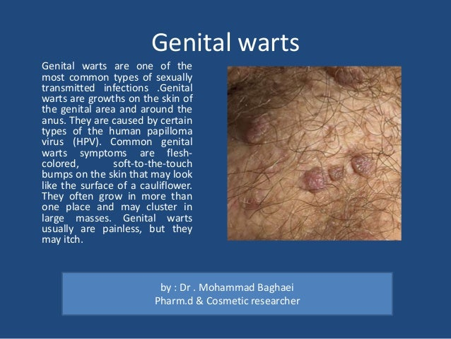 Single fleshy growth around anus