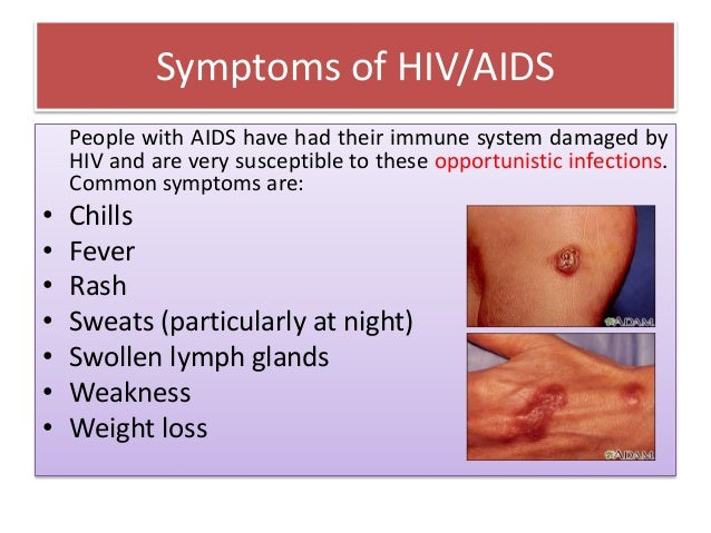 A brief talk on hiv aids college seminer