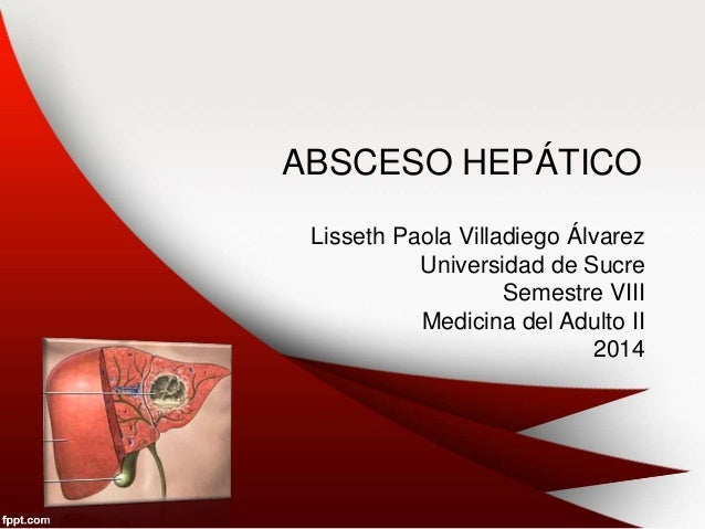 ABSCESO HEPÁTICO Lisseth Paola Villadiego Álvarez Universidad de Sucre Semestre VIII Medicina del Adulto II 2014
