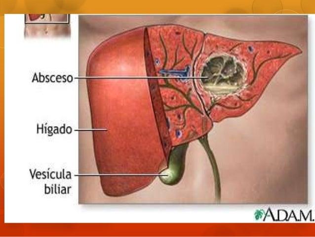 ABSCESO HEPATICO EPUB