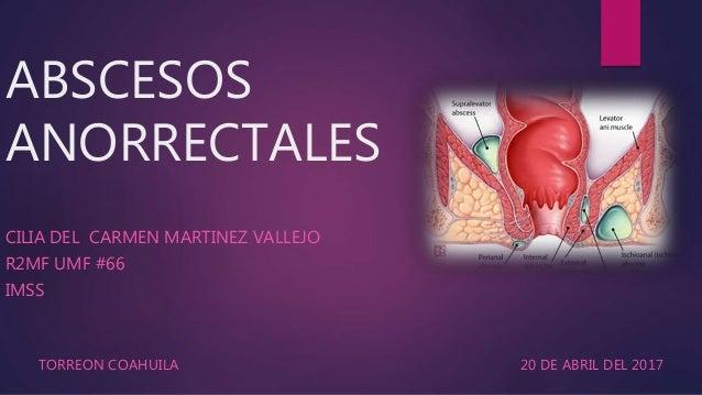 ABSCESOS ANORRECTALES CILIA DEL CARMEN MARTINEZ VALLEJO R2MF UMF #66 IMSS TORREON COAHUILA 20 DE ABRIL DEL 2017