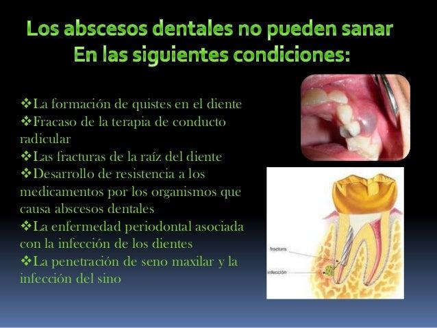 Abscesos dentales