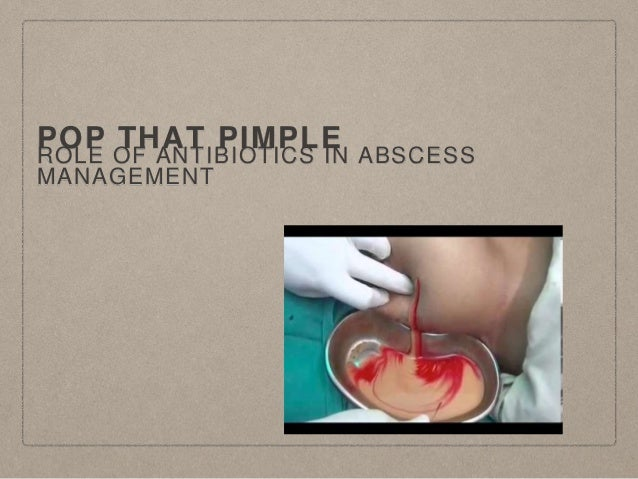 POP THAT PIMPLE ROLE OF ANTIBIOTICS IN ABSCESS MANAGEMENT