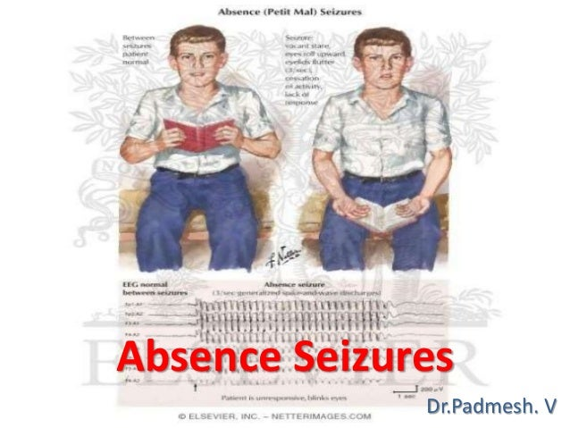 absence seizures    dr padmesh