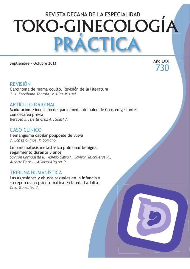 TOKO-GINECOLOGÍA PRÁCTICA REVISTA DECANA DE LA ESPECIALIDAD Septiembre - Octubre 2013 REVISIÓN Carcinoma de mama oculto. R...