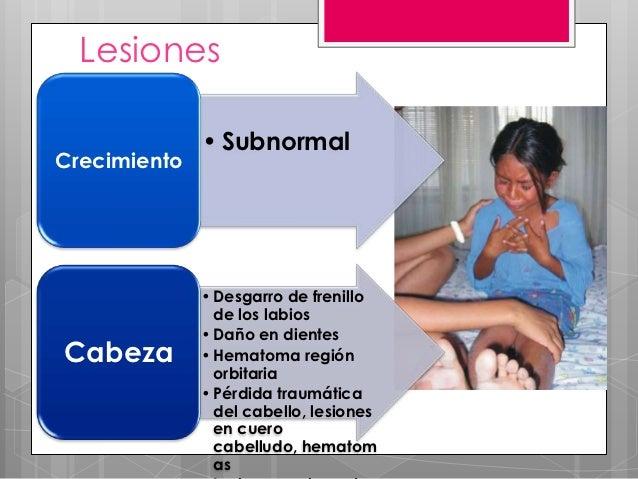 Lesiones              • SubnormalCrecimiento              • Desgarro de frenillo                de los labios             ...