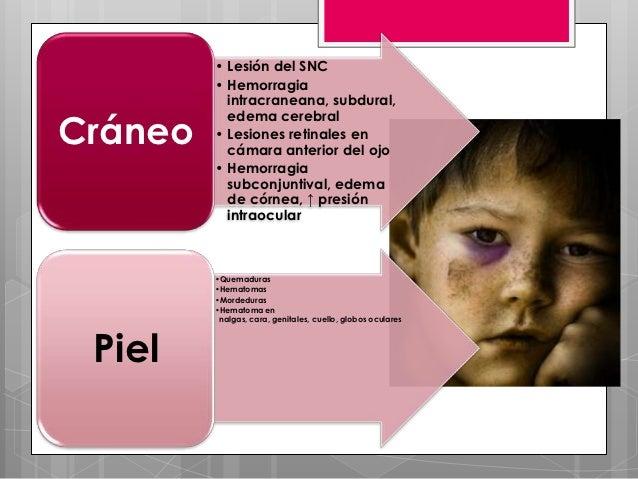 • Lesión del SNC         • Hemorragia           intracraneana, subdural,           edema cerebralCráneo   • Lesiones retin...