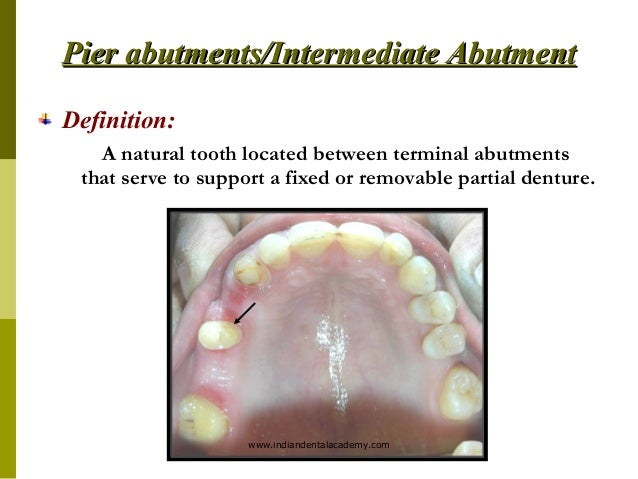 Abutment evaluation / cosmetic dentistry training