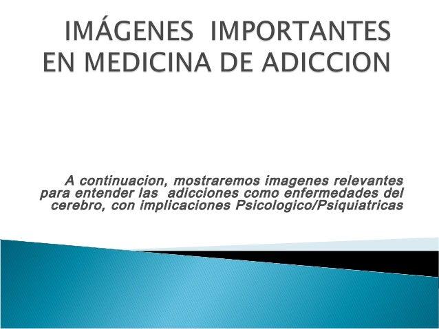 A continuacion, mostraremos imagenes relevantes para entender las adicciones como enfermedades del cerebro, con implicacio...