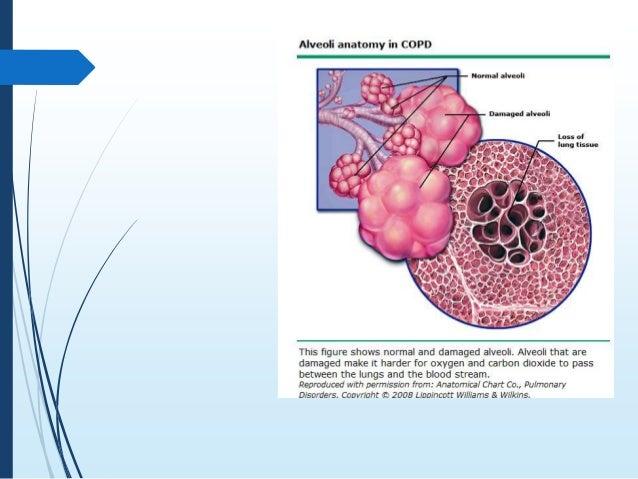 generic flomax avodart