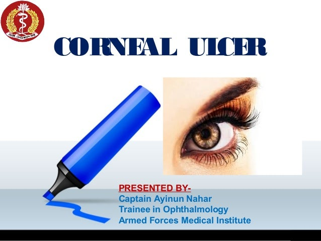 CORNEAL ULCER PRESENTED BY- Captain Ayinun Nahar Trainee in Ophthalmology Armed Forces Medical Institute