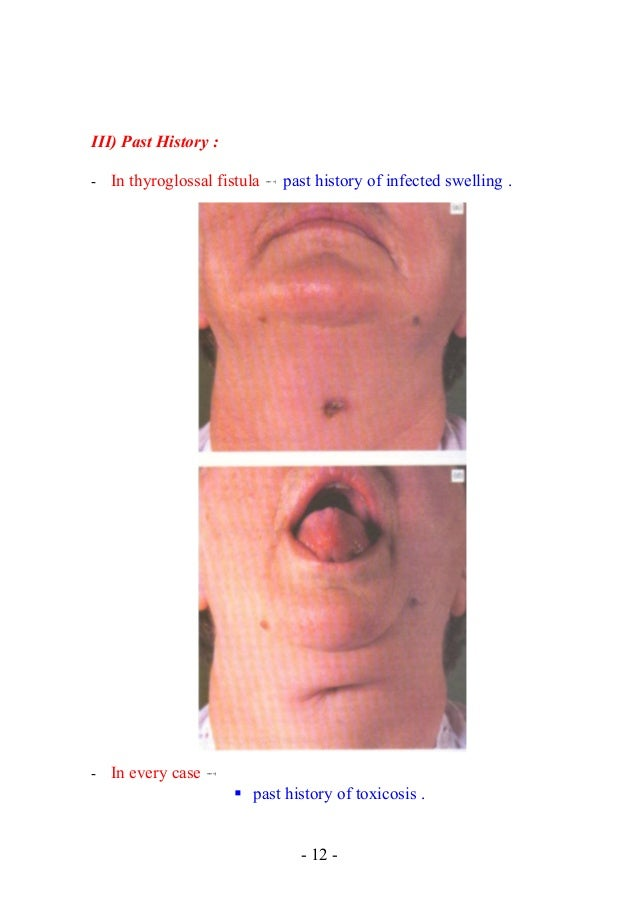 Increase muscle in face