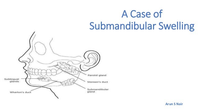 A case of submandibular swelling