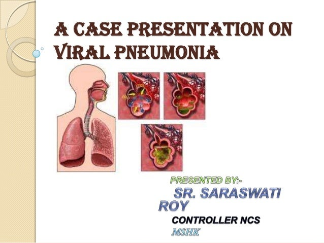 case study pneumonia powerpoint Biomarkers and bacterial pneumonia risk in patients with treated hiv infection: a case-control study sonja m bjerk.
