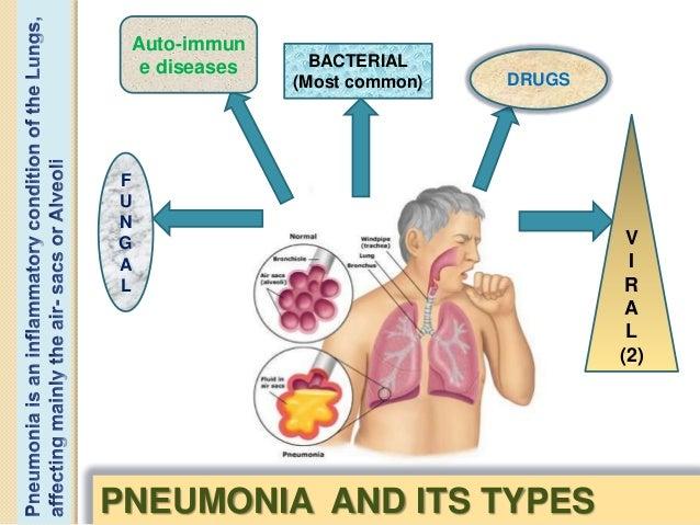 pneumonia virus diagram wiring diagram tutorial Pneumonia Virus Cartoon a case presentation on viral pneumoniaprovisional diagnosis was thought to be viral pneumonia; 4
