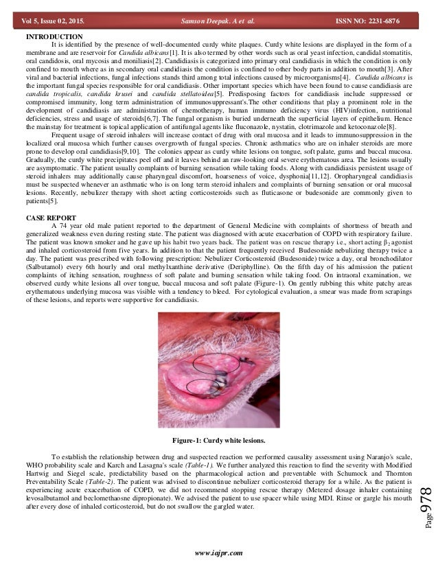 A case report on oral candidiasis induced by inhaler corticosteroids
