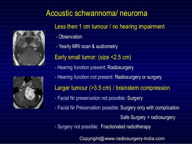 Acoustic schwannoma/ neuroma Less then 1 cm tumour / no hearing impairment - Observation - Yearly MRI scan & audiometry Ea...