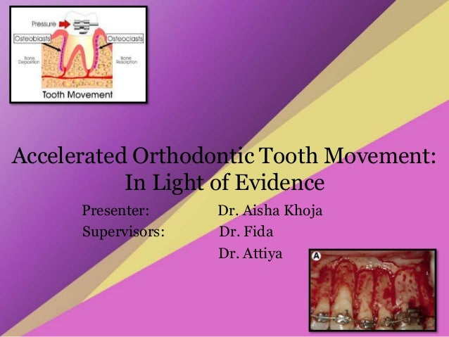 Accelerated Orthodontic Tooth Movement: In Light of Evidence Presenter: Dr. Aisha Khoja Supervisors: Dr. Fida Dr. Attiya