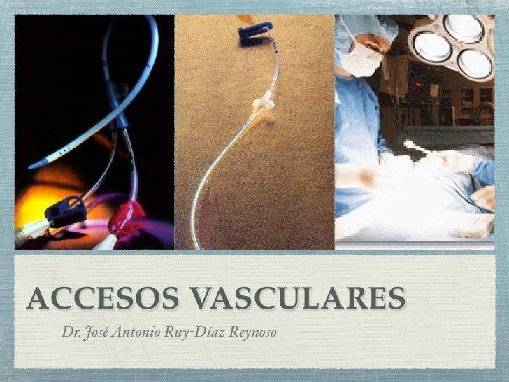 ACCESOS VASCULARES Dr. José Antonio Ruy-Díaz Reynoso