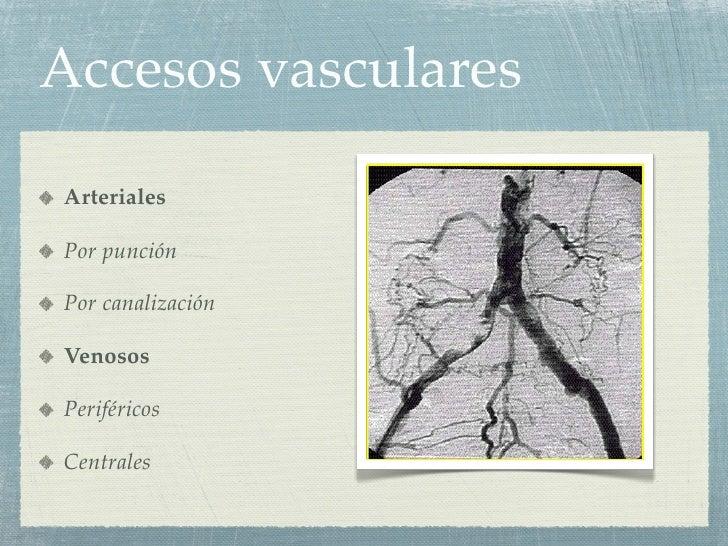 Accesos vasculares Slide 2