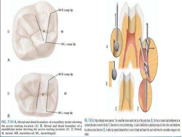Access Opening Of Molar Teeth