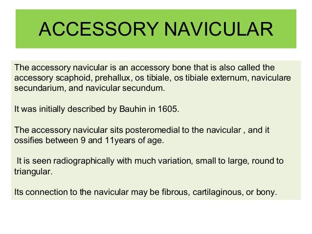 Accessory Navicular Related online courses on physioplus. accessory navicular