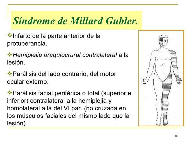 Resultado de imagen de Lesiones protuberanciales Síndrome de Millard-Gübler