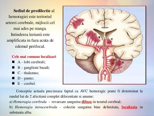 umflarea membrelor după accident vascular cerebral