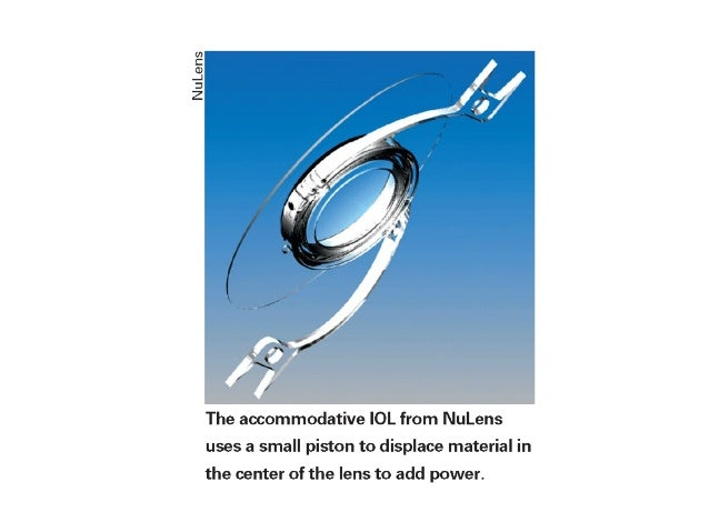 accommodating iol The crystalens – accommodating iol what are the presbyopia-correcting iols or the accommodating iols these are the newest and most expensive generation of iols.
