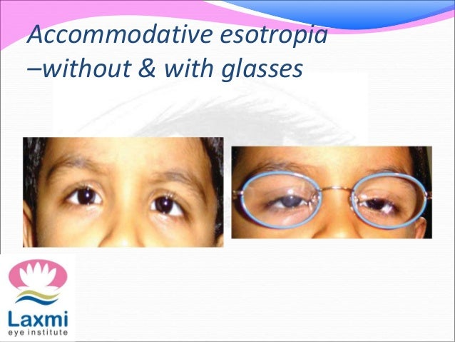 Accommodative esotropia –without & with glasses