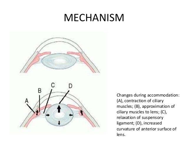 • (1) incipient presbyopia  The beginning of presbyopia  (2)functional presbyopia  When it disturbs the visual function...