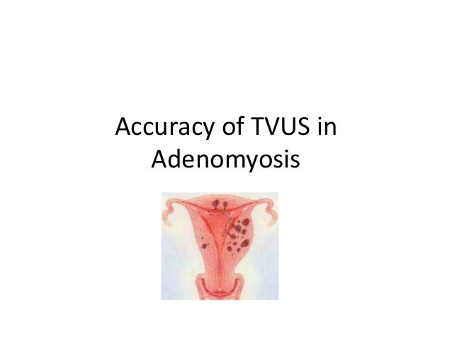 Accuracy of TVUS in Adenomyosis