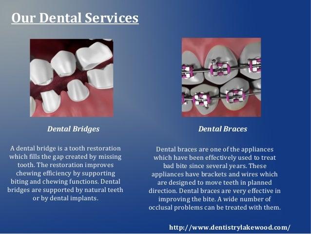 Cosmetic Dentistry Dental Implants Twilight Sleep Dentist In Lakewo
