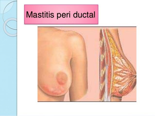 El estrógeno y prolaktin para el aumento del pecho