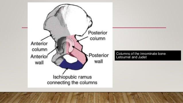Acetabular Fractures