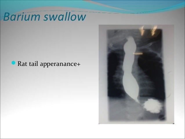 Achalasia Barium Swallow