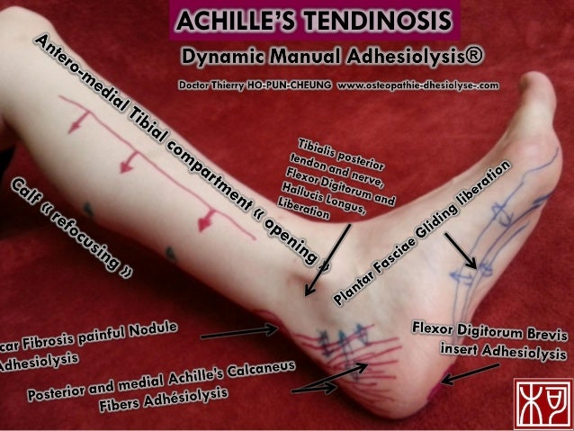 ACHILLE'S TENDINOSIS