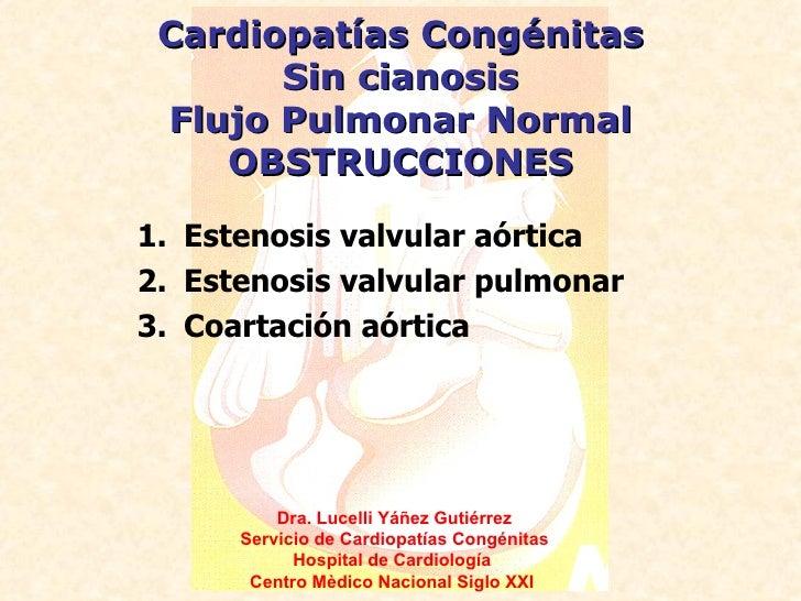 Cardiopatías Congénitas       Sin cianosis Flujo Pulmonar Normal    OBSTRUCCIONES1. Estenosis valvular aórtica2. Estenosis...