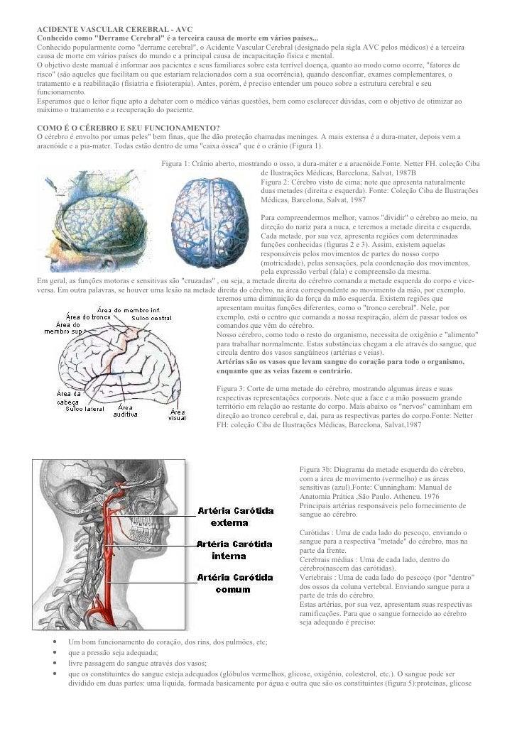 """ACIDENTE VASCULAR CEREBRAL - AVC Conhecido como """"Derrame Cerebral"""" é a terceira causa de morte em vários países... Conheci..."""