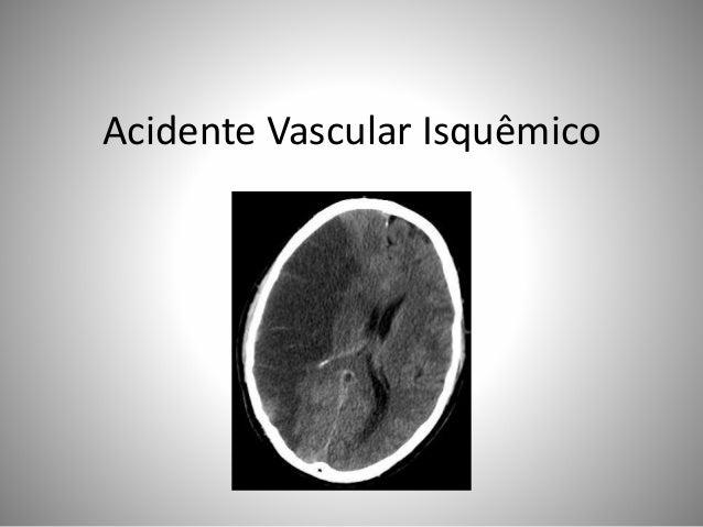 Acidente Vascular Isquêmico