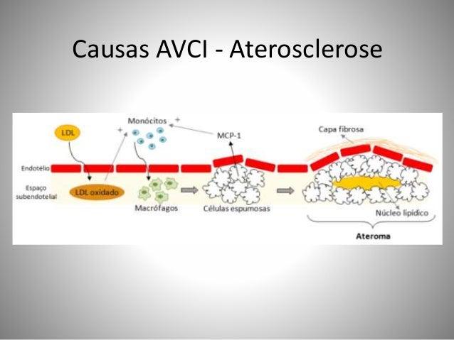 Causas AVCI - Aterosclerose