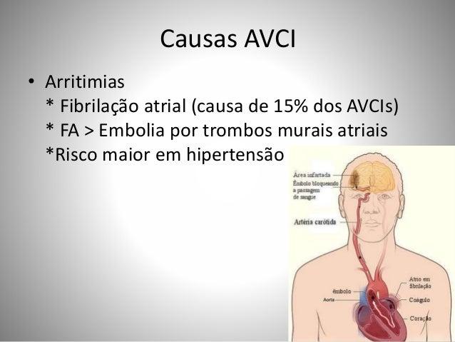 Causas AVCI • Arritimias * Fibrilação atrial (causa de 15% dos AVCIs) * FA > Embolia por trombos murais atriais *Risco mai...