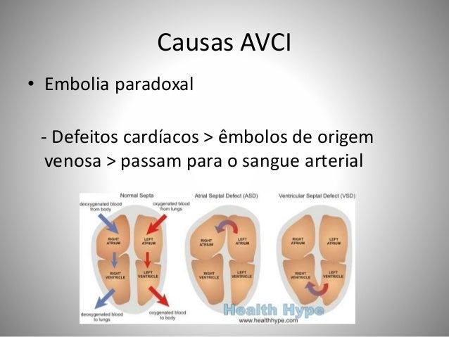 Causas AVCI • Embolia paradoxal - Defeitos cardíacos > êmbolos de origem venosa > passam para o sangue arterial