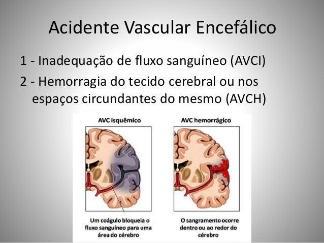 Acidente Vascular Encefálico 1 - Inadequação de fluxo sanguíneo (AVCI) 2 - Hemorragia do tecido cerebral ou nos espaços ci...