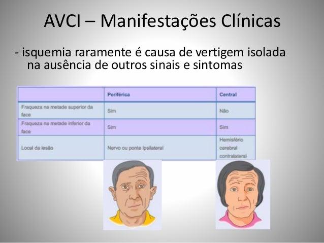 AVCI – Manifestações Clínicas - isquemia raramente é causa de vertigem isolada na ausência de outros sinais e sintomas