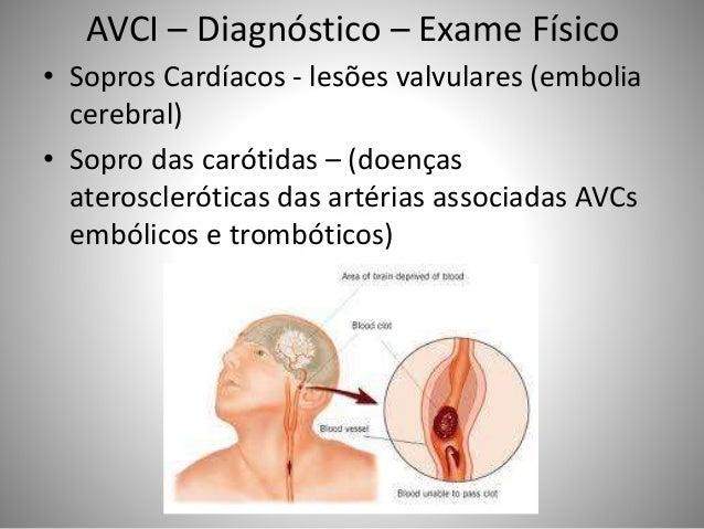 AVCI – Diagnóstico – Exame Físico • Sopros Cardíacos - lesões valvulares (embolia cerebral) • Sopro das carótidas – (doenç...